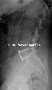 Anterior Lumbar Interbody Fusion: Anterior Lumbar Interbody Fusion | Anterior Lumbar Interbody Fusion in Pune | ALIF | ALIF in Pune | Spine Treatment In Pune