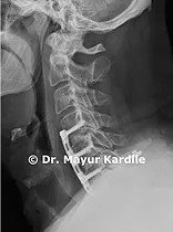 Anterior Cervical Discectomy/ Corpectomy and Fusion : Anterior Cervical Discectomy in Pune | Corpectomy and Fusion in Pune | Anterior Cervical Discectomy | Corpectomy and Fusion | Spine Treatment In Pune