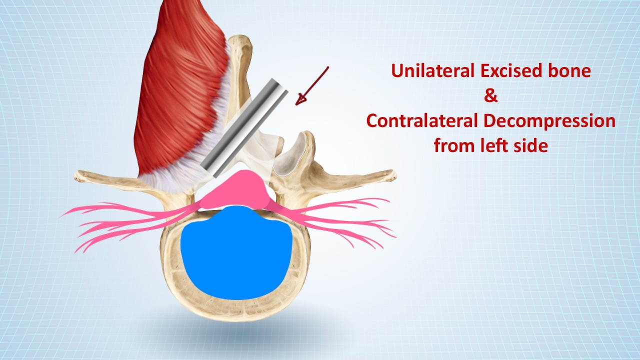 Minimally Invasive Lumbar Decompression:  Minimally Invasive Lumbar Decompression | Spine Treatment In Pune | back pain treatment in Pune | lower back pain treatment in Pune