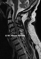 Myelopathy best spine treatment in Pune   Spine Treatment in Pune   Back pain treatment in Pune   Cervical Myelopathy treatment