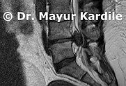 Slip Disk:Slip disc treatment in Pune | Best spine surgeon in Pune| Spine dr near me | Top spine surgeon in Pune | Sciatica treatment in Pune