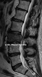 Best spine surgeon in Pune | Top spine surgeon in Pune | Best Spine Tumor Treatment in Pune | Spine Cancer treatment specialist