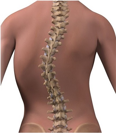 Back pain: Scoliosis treatment in Pune | spine surgeon in Pune | Symptoms of scoliosis|Top spine surgeon in Pune