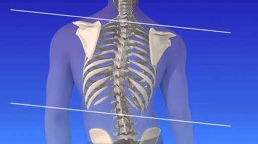 Scoliosis: best scoliosis clinic in Pune | back pain treatment in Pune | top spine surgeon in Pune | lower back pain treatment in Pune