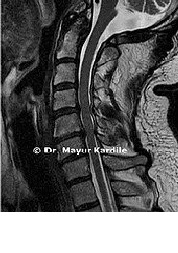 ACDF for Cervical Radiculopathy Anterior Cervical Discectomy in Pune   Corpectomy and Fusion in Pune