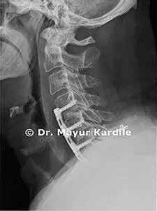 ACDF for Cervical Radiculopathy|Spine surgery in Pune