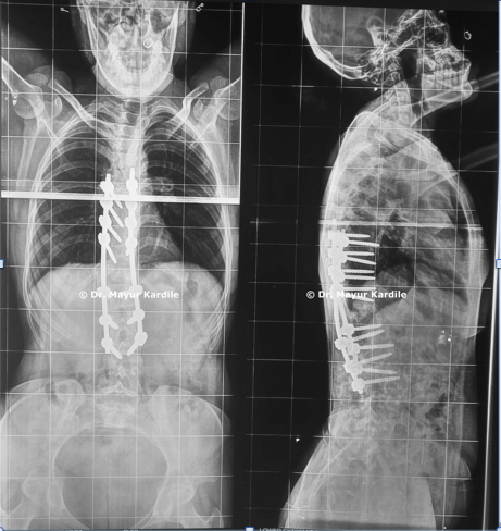 Kyphosis treatment in Pune   Spinal bones treatment in Pune
