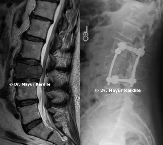 L3 Metastatic Tumor Reconstruction|Spine tumors surgery in Pune | Spine tumor removal surgery