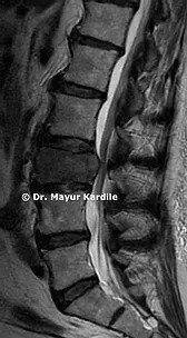 Metastatic tumor|Spine tumors surgery in Pune | Spine tumor removal surgery | Spine surgery in Pune