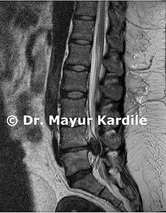 Herniated Disc condition