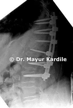 Pune Spine Institute,  Spine clinic in pune,  Spine centre in pune